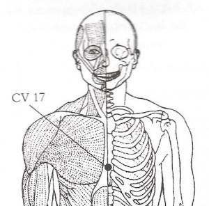 CV-17